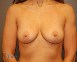 Before-Anatomical Cohesive Gel