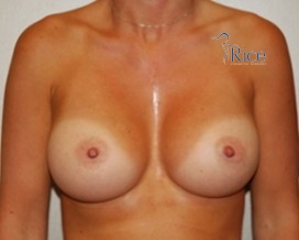 After-Breast Augmentation Round Cohesive Gel