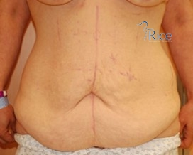 Before-Tummy Tuck