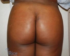 Brown butt pics