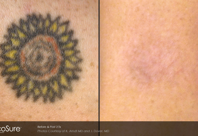Laser Tattoo Removal Toronto Rice Cosmetic Surgery