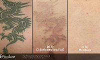 Q-Switch Versus Picosure For Tattoo Removal