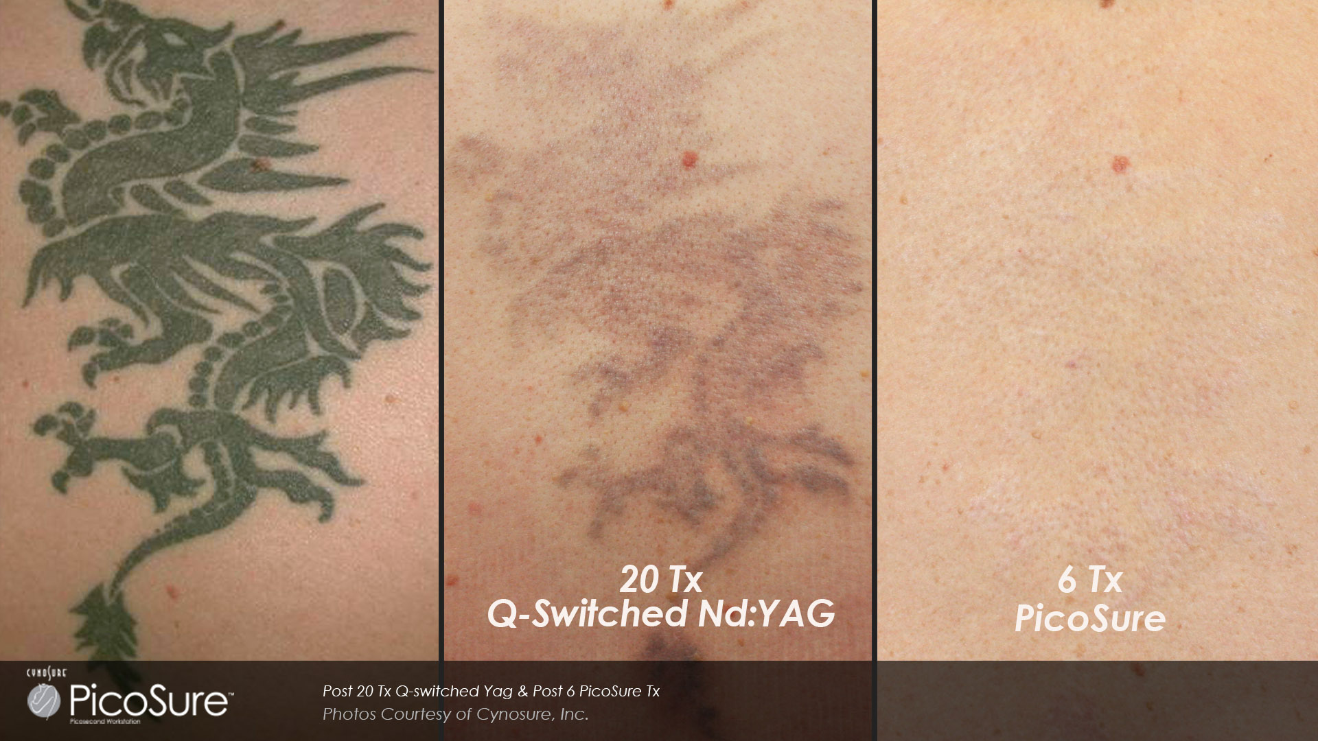Picosure Laser Tattoo Removal Toronto Rice Cosmetic Surgery