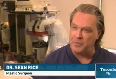 Picosure Tattoo Removal on CBC News