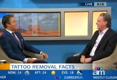 Toronto Laser Tattoo Removal