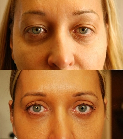 Eyelid Surgery Toronto - Before & After Photo - Rice Cosmetic Surgery
