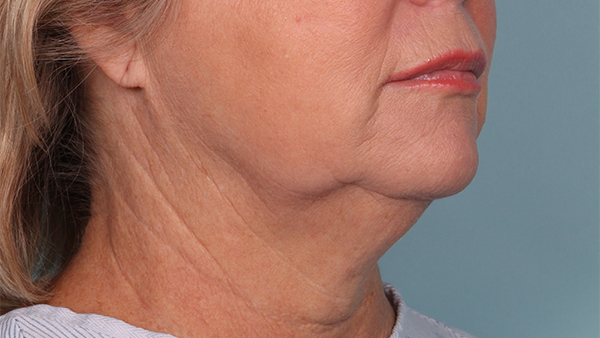 Before-Neck Lipo