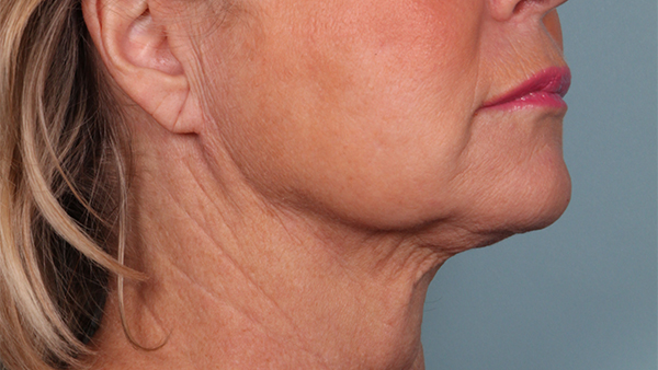 After-Neck Lipo