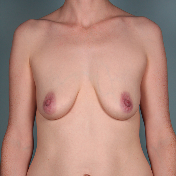 Before-Breast Lift with Augmentation