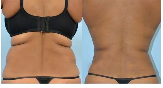 Aquashape-liposuction-toronto-Rice Cosmetic Surgery
