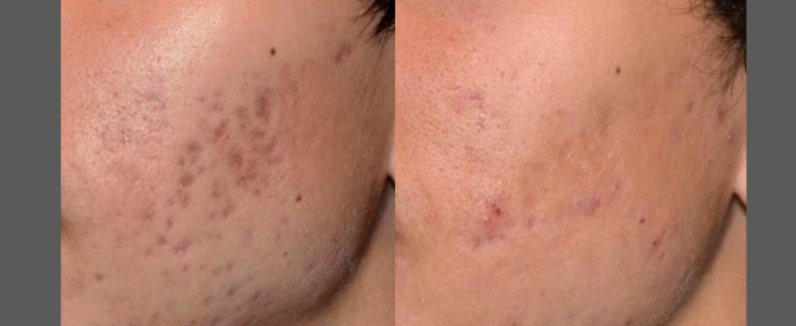 BA_PicoSure_R_Saluja_Acne_Post4Tx_01-1140x468