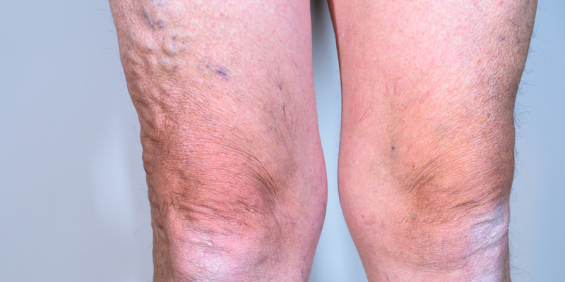 Varicose Veins - Rice Cosmetic Surgery - Toronto, Ontario