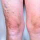 Varicose Veins - Rice Cosmetic Surgery - Toronto, Ontario