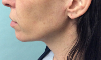 Restore Your Youthful Appearance with the Minimal Access Cranial Suspension (MACS) Facelift